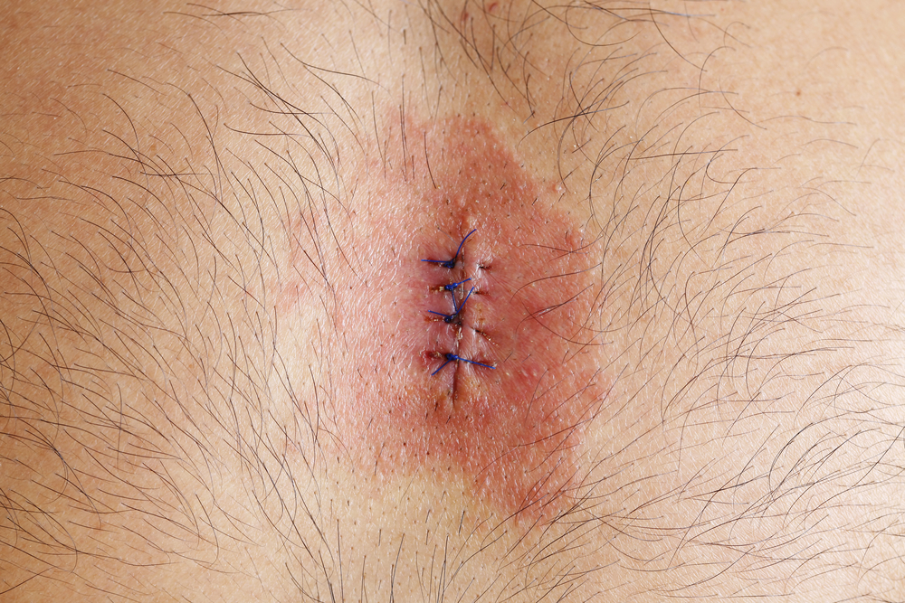 Sternotomy Infection To Be Studied As Primary Outcome For Clinical Trial